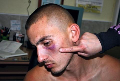 Kurir: Policajci ga tukli, nije hteo da im pere kola za džabe!