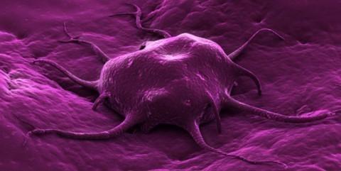 Oko 800 obolelih od karcinoma u Aleksincu
